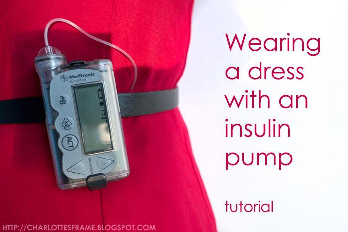 wearing a dress with an insulin pump, insulin pump and dresses, insulinepomp en jurkjes, insulinepomp en jurken, diabetes problems, diabetes and dresses,