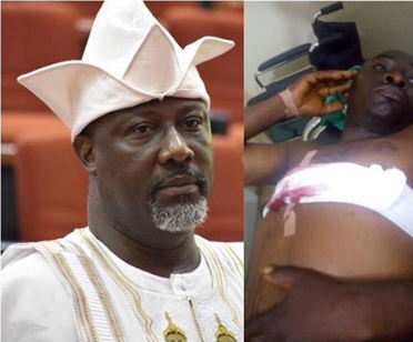 Police summon Melaye after his guards shot sergeant