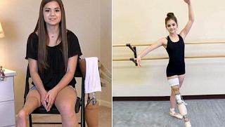 15χρονη μπαλαρίνα που έχασε το πόδι της από καρκίνο, δεν χαρίστηκε στη σκληρή ζωή και δεν έπαψε ποτέ να χορεύει