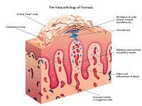 http://saysoeshson.blogspot.co.id/2015/11/pengobatan-tradisional-kulit-psoriasis.html
