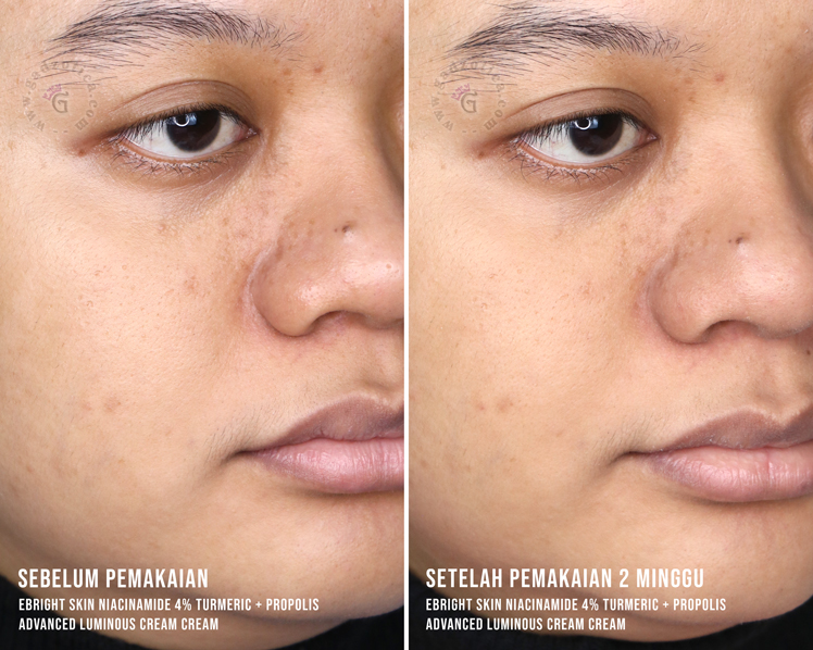 Before After eBright Skin Niacinamide Cream