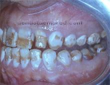 """<Imgsrc =""""destrucción-superficie-dental-por-fluorosis-regional.jpg"""" width = """"220"""" height """"170"""" border = """"0"""" alt = """"Lesiones en esmalte por fluorosis."""">"""