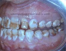 """<Img src =""""destrucción-superficie-dental-por-fluorosis-regional.jpg"""" width = """"220"""" height """"170"""" border = """"0"""" alt = """"Lesiones en esmalte por fluorosis."""">"""