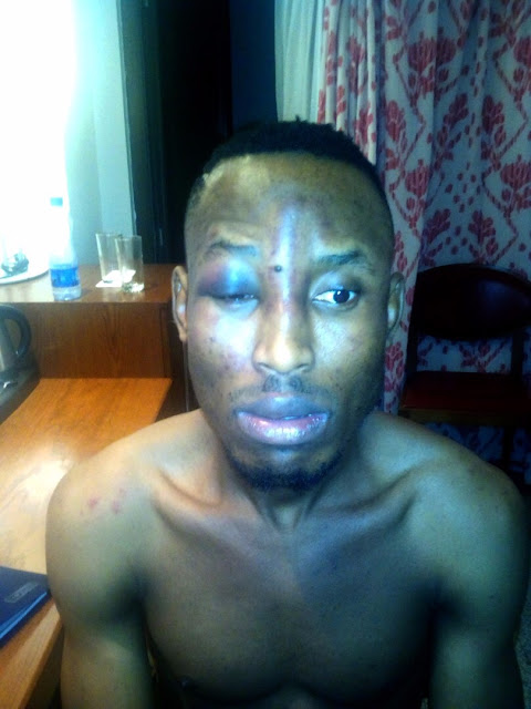 Singer-Mr-2Kay-reportedly-robbed-in-his-hotel-room-during #BuckwyldNBreathless-concert