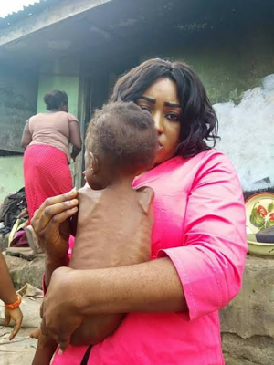 Photos: Nigerian doctor rescues severely malnourished child and her 16-year-old mother in Calabar 4
