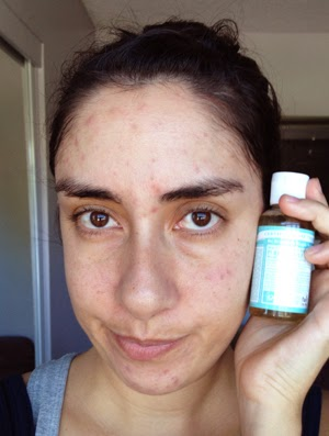 Dr  Bronner's Review - The Acne Experiment   Crappy Candle