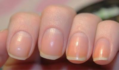 Que signifie le «croissant de lune» des ongles?