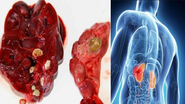 4 macam obat trdisiaonal yang dapat mengobati batu ginjal dengan cepat