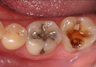 Solusi Perawatan Untuk Gigi Berlubang Besar Dan Keropos Yang Parah