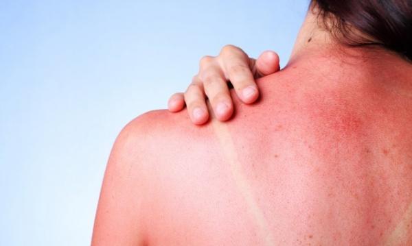 Τρία tips για να αντιμετωπίσετε άμεσα το «κάψιμο» από τον ήλιο