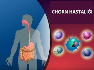 Çocukta Crohn Hastalığı Nedir? Belirtileri Nelerdir?