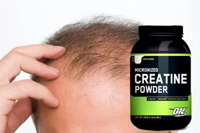 La creatina podría causar pérdida de cabello aunque no siempre ocurre
