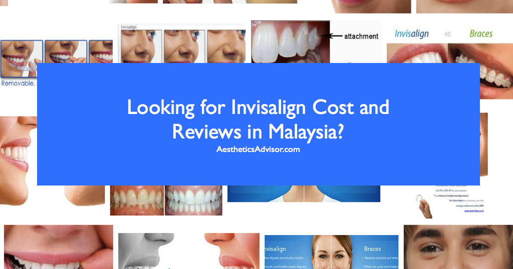 Best Invisalign Malaysia on 1