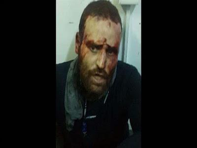 الإرهابي عشماوي, عدد ضحاياه, 135 شهيدا وعشرات المصابين,
