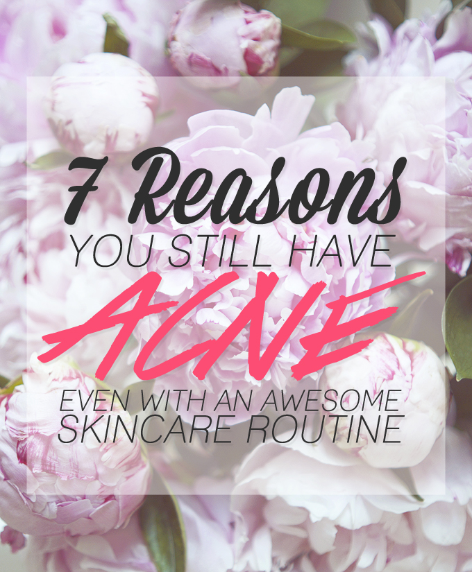 7 Reasons You Still Have Acne Even With An Awesome Skincare Routine.