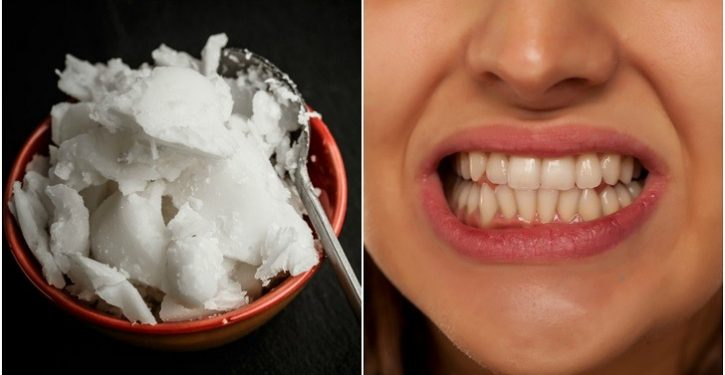 Treat Bad Breath, Tartar And Dental Plaque With Coconut Oil