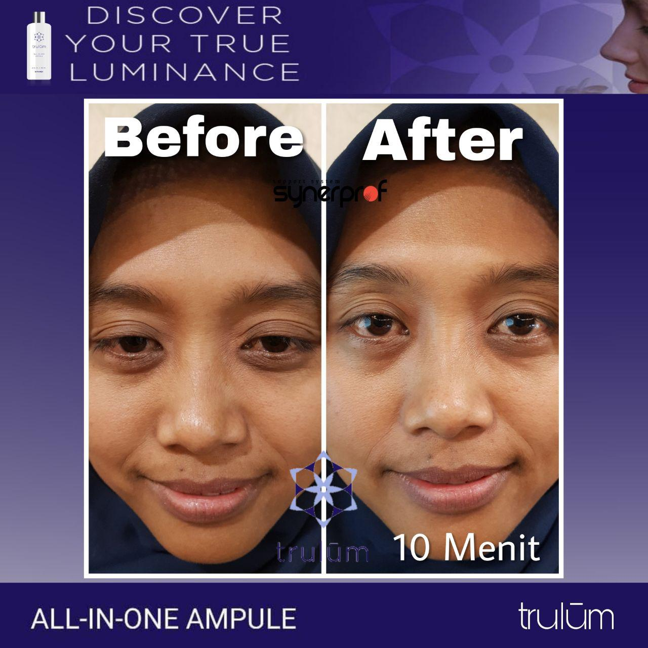 Jual Trulum All In One Ampoule Di Rumbia, Jeneponto WA: 08112338376
