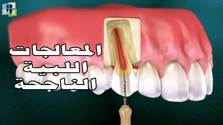 الأسس العلمية لنجاح المعالجات اللبية في طب الأسنان