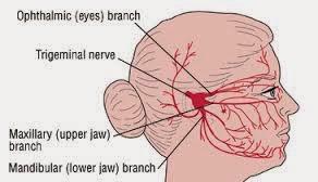 artrita maxilar