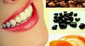 Tips Cara Alami Menghilangkan Karang Gigi Dengan Cengkeh , Baking Soda , Biji Asam Termudah