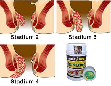 obat wasir stadium 1 fase awal