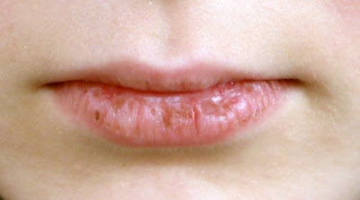 Penyebab Bibir Pecah-Pecah