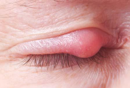 Penyebab Mata Bintitan Dan Cara Mengatasi