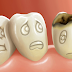 Sugarless drinks can also cause tooth decay