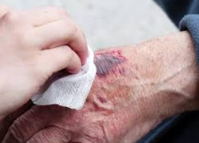 Understanding The Wound Healing Process