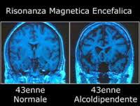 Risultati immagini per sindrome di Wernicke-Korsakoff