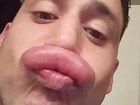 Ingin Punya Bibir Seksi, Komedian Ini Pilih Jalan Pintas, Pakai Sengatan Tawon!