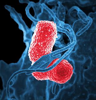 Pneumonia: Jenis, Gejala, dan Pengobatan