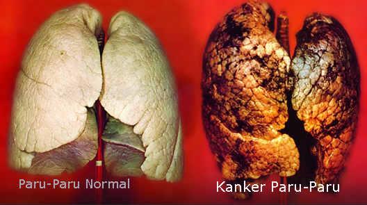 Kanker Paru, Penyebab Utama Kematian di Dunia. Ketahui Penyebabnya Sekarang Juga!