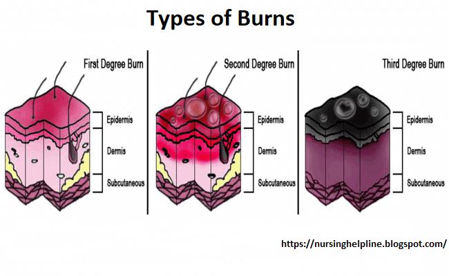 Burn types