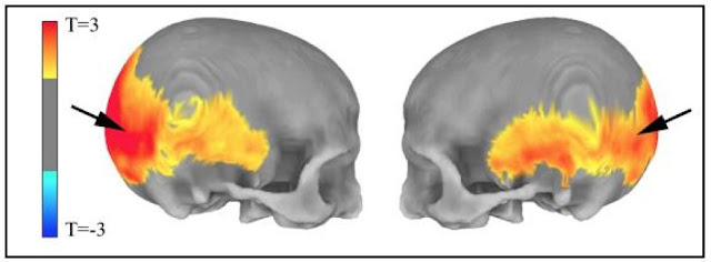 'Residual echo' of ancient humans in scans may hold clues to mental disorders