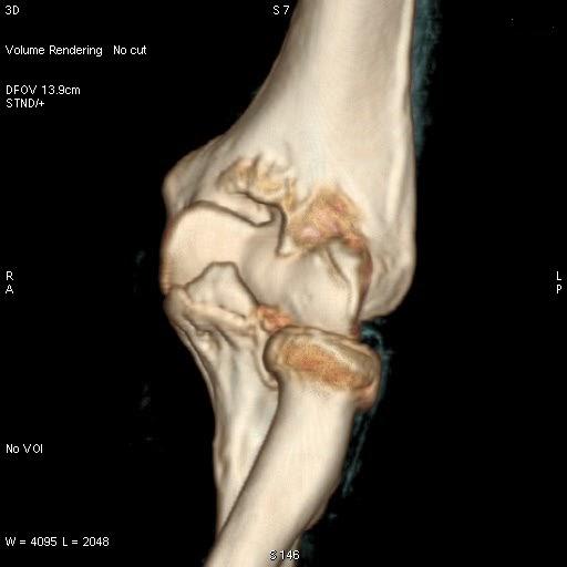 Enteropathic Arthritis Signs And Symptoms Ny Associates ...