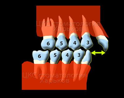 Схематическое изображение прогнатического прикуса в боковой проекции