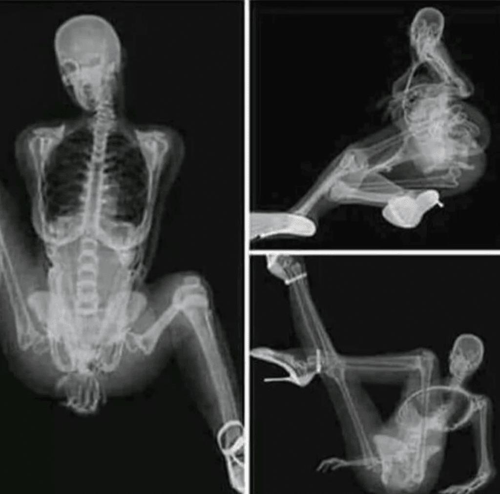 Quando uma radiologista manda nudes
