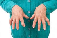 Artritis reumatoide puede causar destrucción de articulaciones