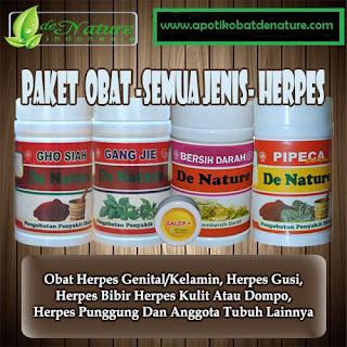 Obat Penyakit Herpes Paling Manjur