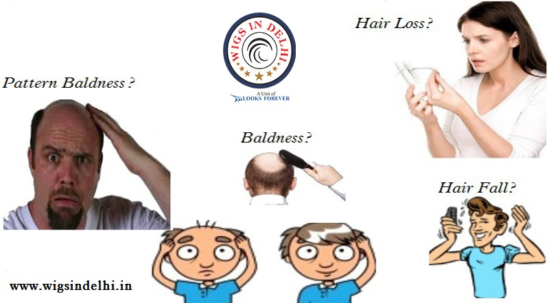Worried Of Hair Loss Or Pattern Baldness Best Hair Loss Clinic In