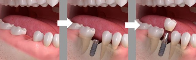 Dental implants in plantation