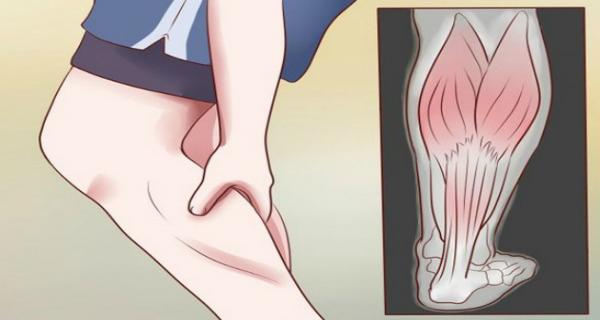 ce trebuie făcut pentru a preveni venele de păianjen cum preveniți picioarele neliniștite