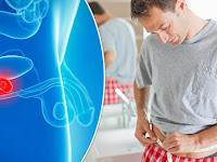 Cara Mewaspadai dan Mengobati Kanker Prostat