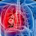 Macam Macam Penyakit Pernafasan Beserta Penyebab, Cara Pencegahannya Dan Pengobatanya Secara Alami