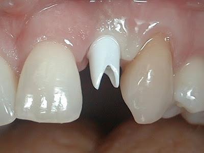 Có 3 cách khôi phục răng số 2 sau khi bị mất