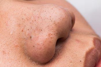 Tips Hilangkan Bintik Hitam dan Putih Pada Wajah