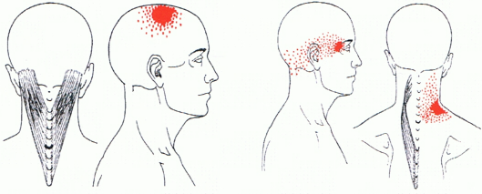 Anatomy of the Sinew Channels: Head Forward Posture: Part 1