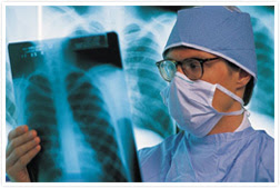 Merokok dan Asap Rokok Menjadi Punca Utama Kanser Paru-paru