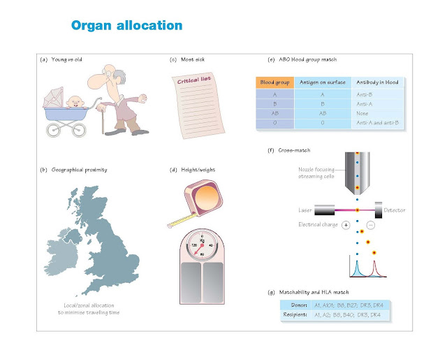 Organ Allocation, Eligibility for transplantation, Kidney transplantation, Pancreas transplantation, Liver transplantation, Heart transplantation, Lung transplantation, Principles in organ allocation, Allocation in practice, Kidney, Pancreas for islets or whole organ,